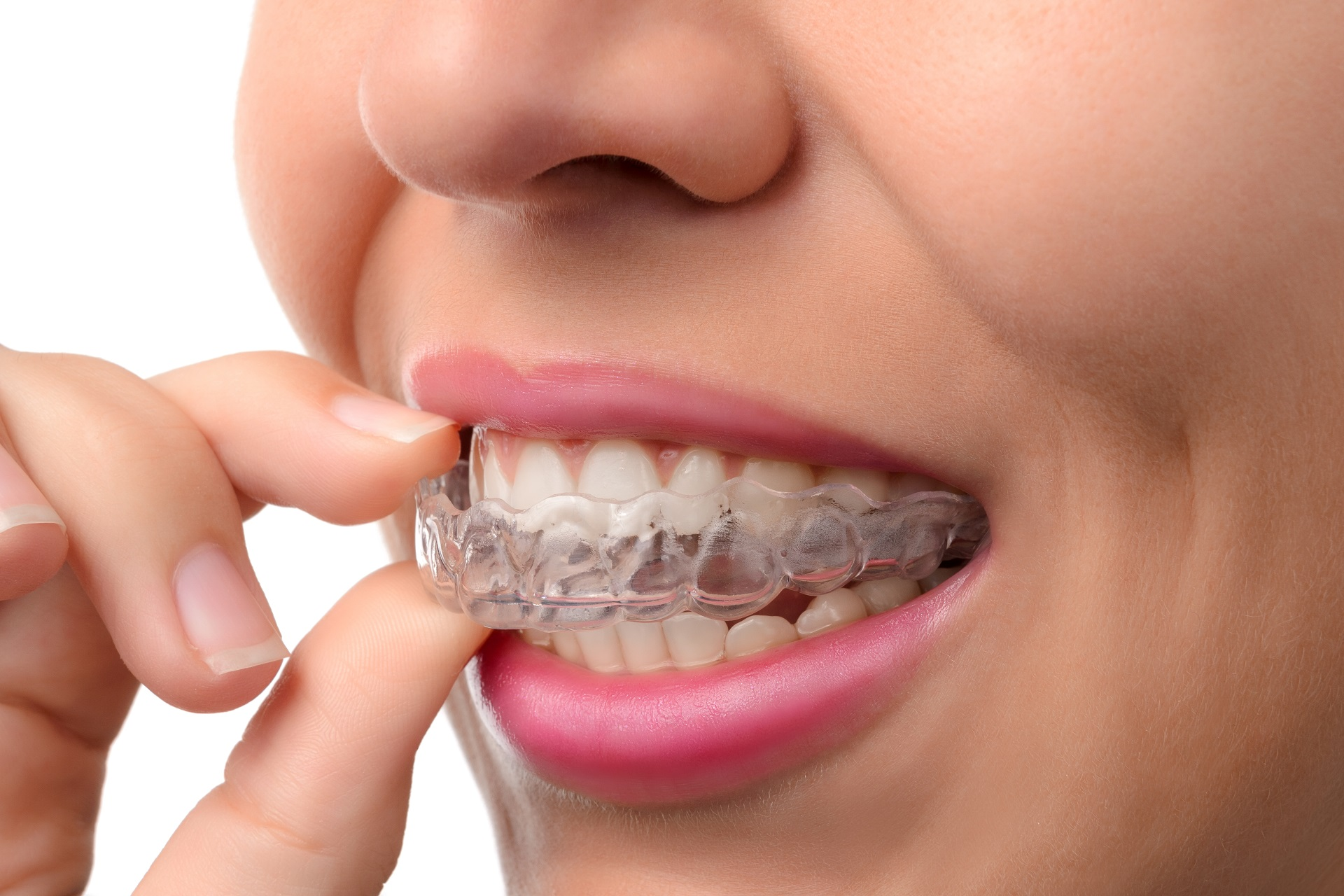 What to Expect From Orthodontic Treatment